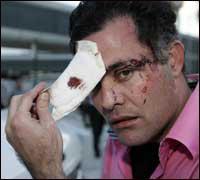 Arrestan a policía que agredió a periodista miamense en Bahamas